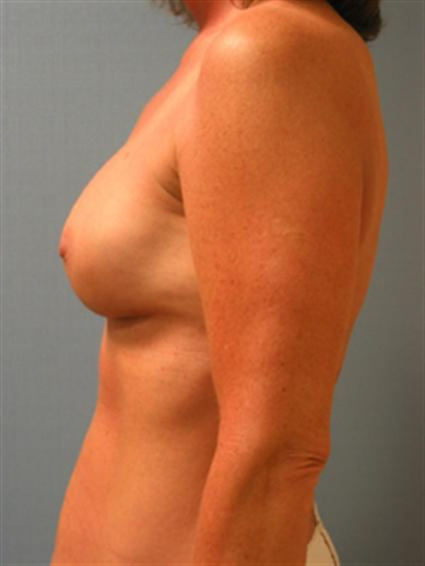 Complex Breast Revision Gallery - Patient 1310659 - Image 6