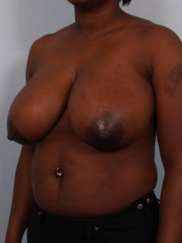 Breast Reduction Gallery - Patient 1310663 - Image 3