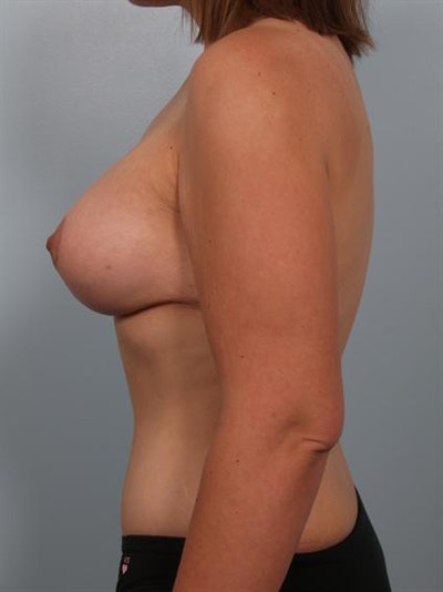 Breast Lift Gallery - Patient 1310661 - Image 4