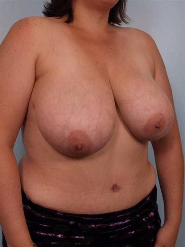 Mommy Makeover Gallery - Patient 1310662 - Image 3