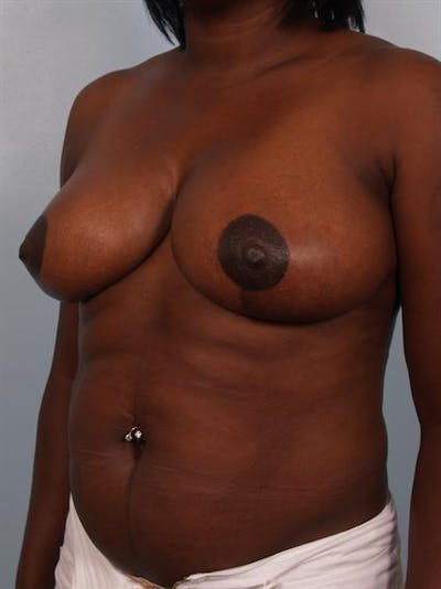 Breast Reduction Gallery - Patient 1310663 - Image 4