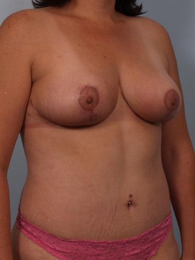 Mommy Makeover Gallery - Patient 1310662 - Image 4