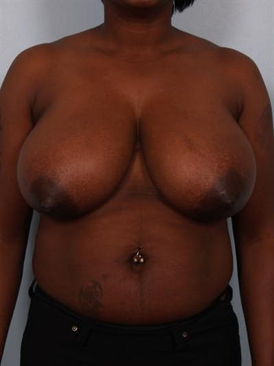 Breast Reduction Gallery - Patient 1310663 - Image 1