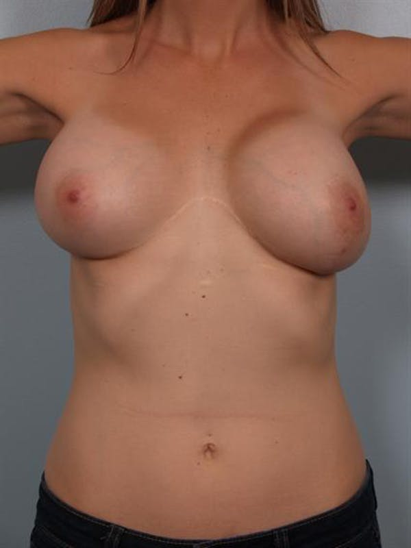 Complex Breast Revision Gallery - Patient 1310665 - Image 1