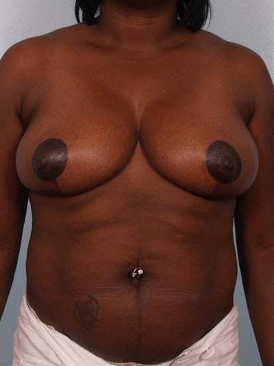 Breast Reduction Gallery - Patient 1310663 - Image 2