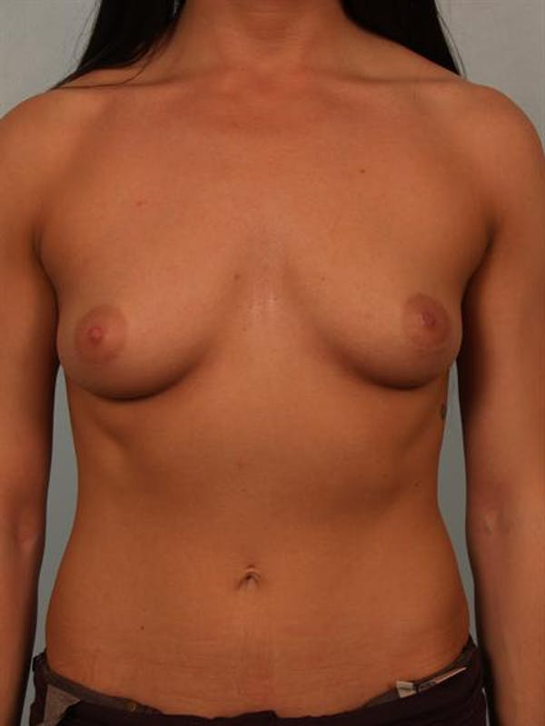Breast Augmentation Gallery - Patient 1310667 - Image 1
