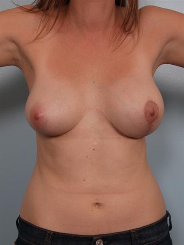 Complex Breast Revision Gallery - Patient 1310665 - Image 2