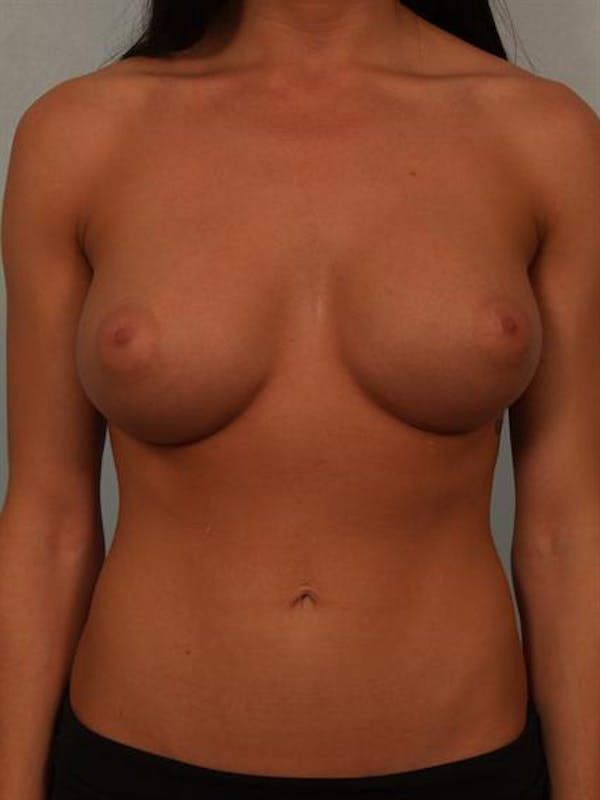 Breast Augmentation Gallery - Patient 1310667 - Image 2