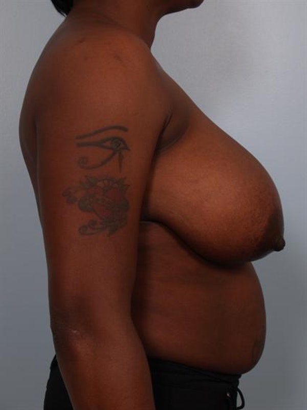 Breast Reduction Gallery - Patient 1310663 - Image 5