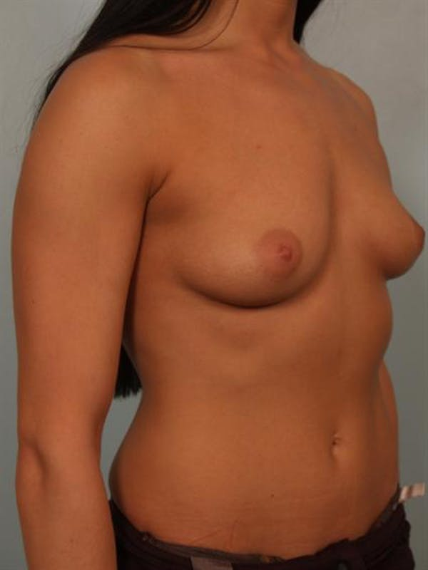 Breast Augmentation Gallery - Patient 1310667 - Image 3