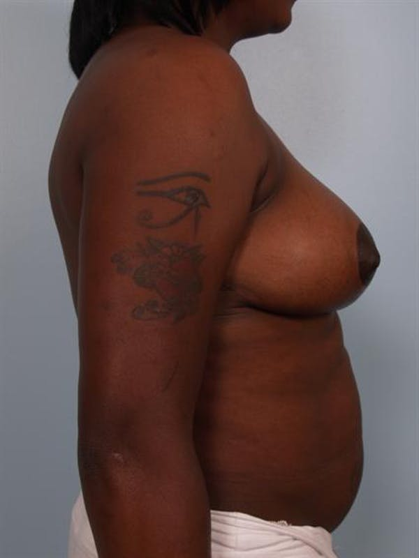 Breast Reduction Gallery - Patient 1310663 - Image 6