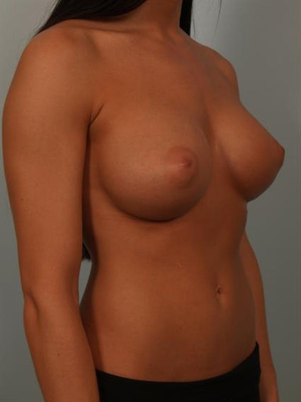 Breast Augmentation Gallery - Patient 1310667 - Image 4
