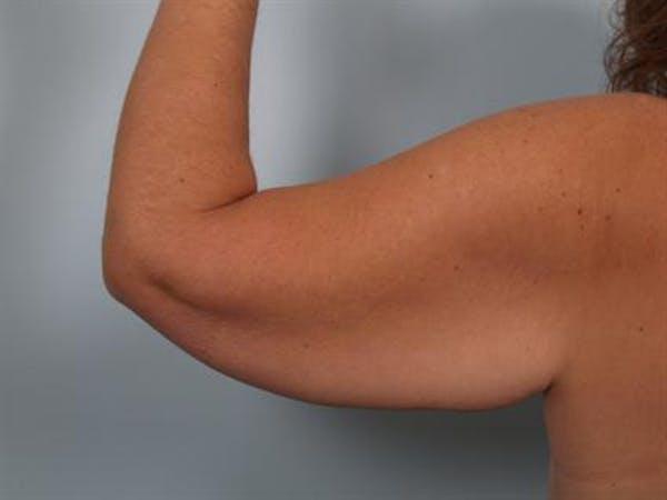 Brachioplasty (Arm Lift) Gallery - Patient 1310666 - Image 1