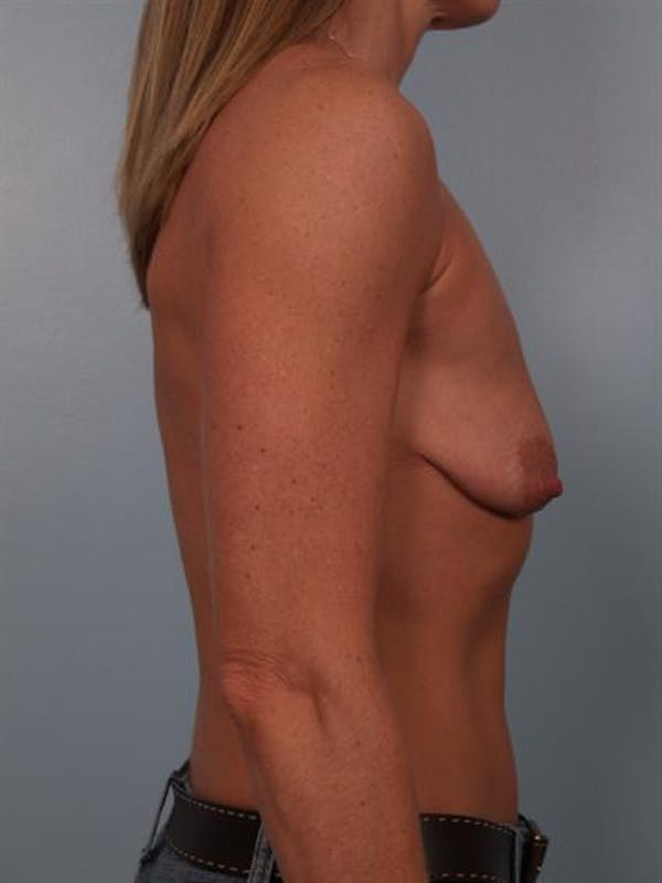 Breast Lift Gallery - Patient 1310669 - Image 3