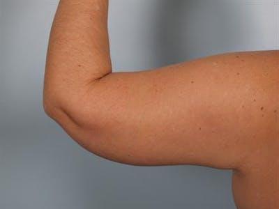 Brachioplasty (Arm Lift) Gallery - Patient 1310666 - Image 2