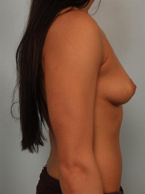 Breast Augmentation Gallery - Patient 1310667 - Image 5