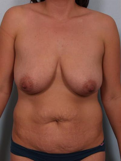 Breast Reduction Gallery - Patient 1310671 - Image 1