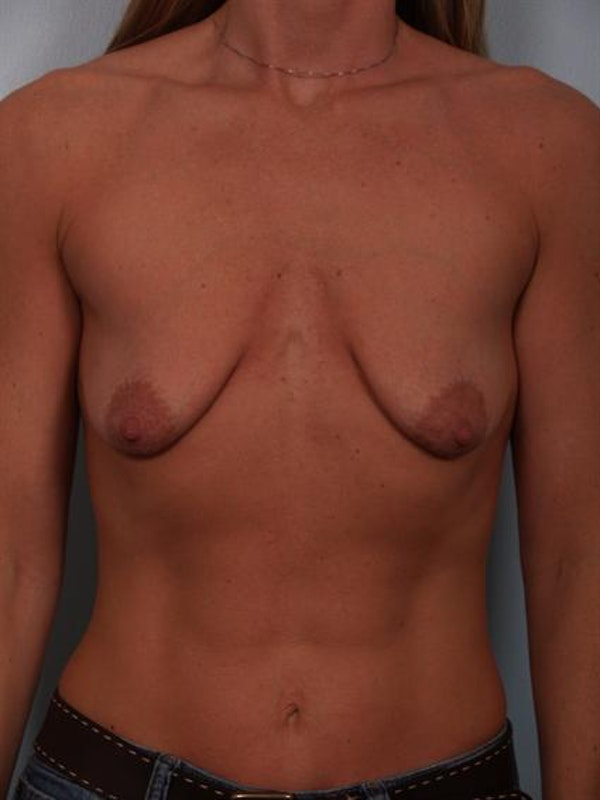 Breast Lift Gallery - Patient 1310669 - Image 1