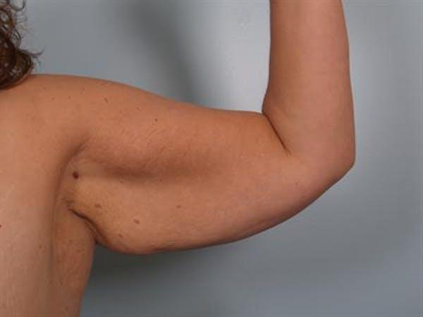 Brachioplasty (Arm Lift) Gallery - Patient 1310666 - Image 3
