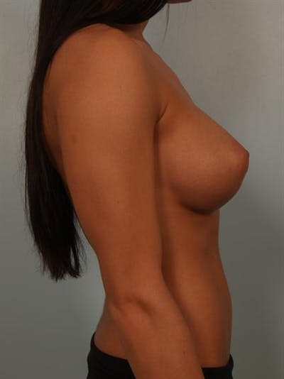 Breast Augmentation Gallery - Patient 1310667 - Image 6