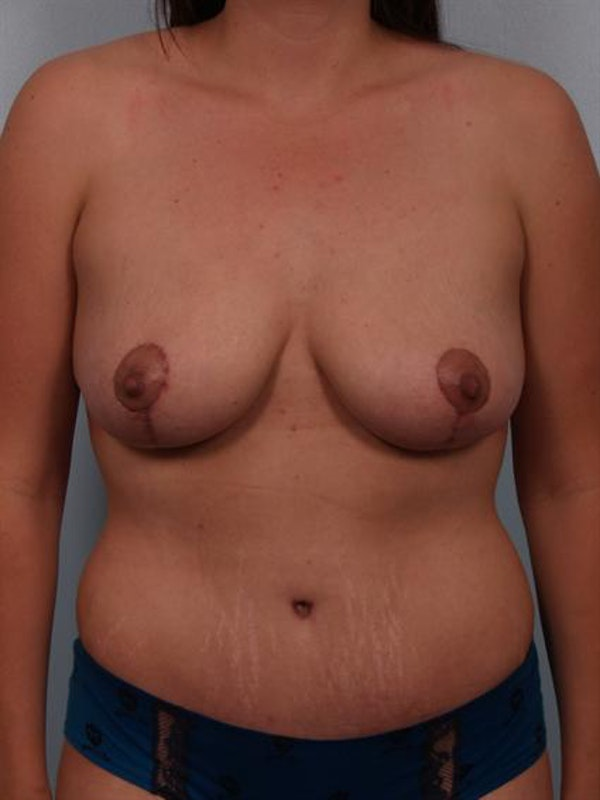 Breast Reduction Gallery - Patient 1310671 - Image 2