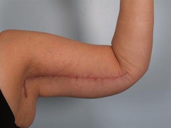 Brachioplasty (Arm Lift) Gallery - Patient 1310666 - Image 4