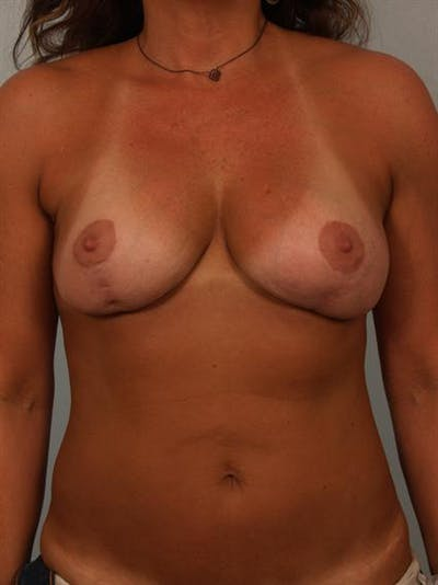 Complex Breast Revision Gallery - Patient 1310673 - Image 1