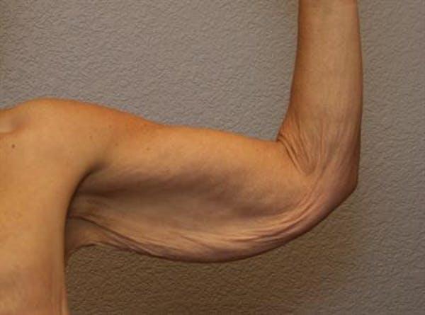 Brachioplasty (Arm Lift) Gallery - Patient 1310672 - Image 1