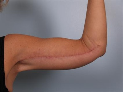 Brachioplasty (Arm Lift) Gallery - Patient 1310672 - Image 2