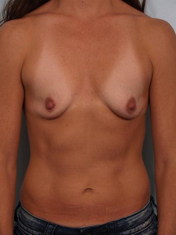 Breast Augmentation Gallery - Patient 1310677 - Image 1