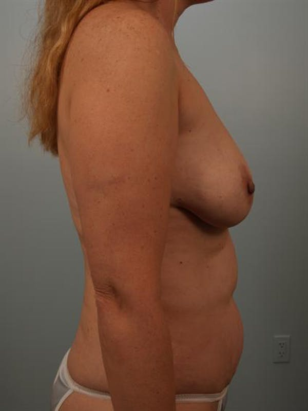 Fat Grafting Gallery - Patient 1310670 - Image 5