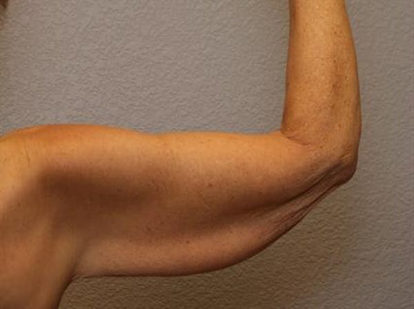 Brachioplasty (Arm Lift) Gallery - Patient 1310672 - Image 3