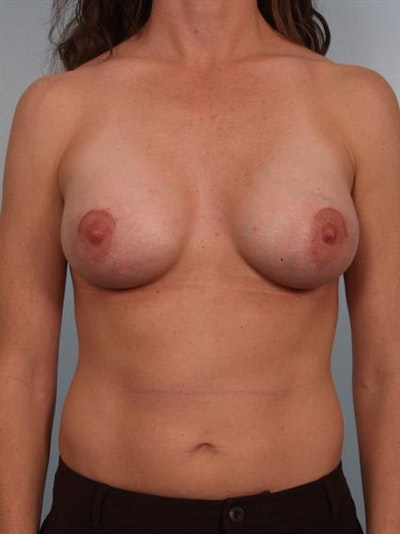 Breast Augmentation Gallery - Patient 1310677 - Image 2