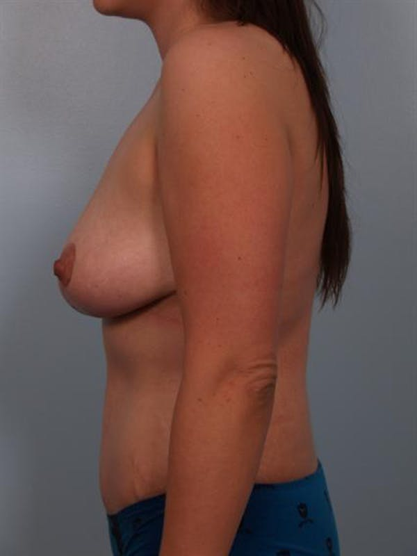 Breast Reduction Gallery - Patient 1310671 - Image 6