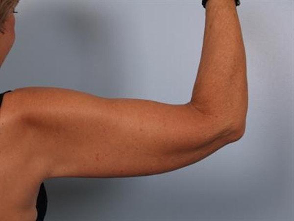 Brachioplasty (Arm Lift) Gallery - Patient 1310672 - Image 4