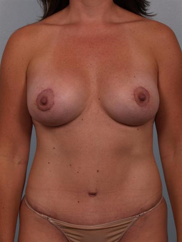Mommy Makeover Gallery - Patient 1310674 - Image 2