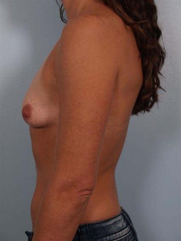 Breast Augmentation Gallery - Patient 1310677 - Image 3