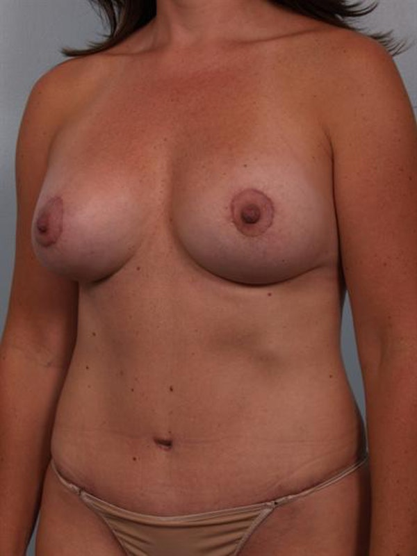 Mommy Makeover Gallery - Patient 1310674 - Image 4