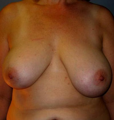 Breast Reduction Gallery - Patient 1310678 - Image 1