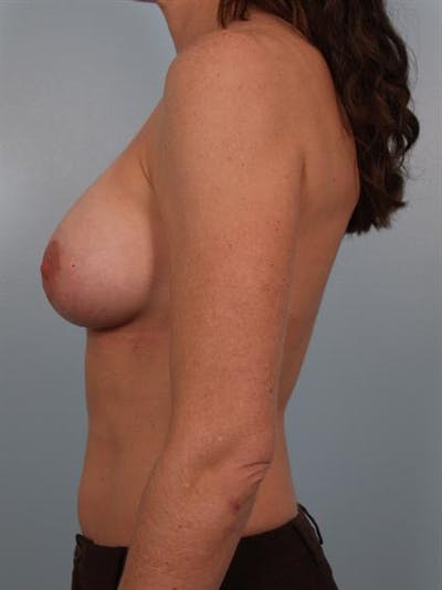 Breast Augmentation Gallery - Patient 1310677 - Image 4