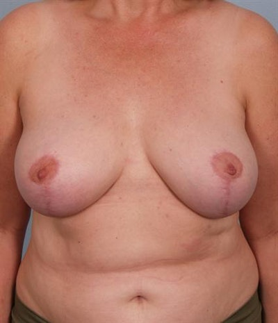 Breast Reduction Gallery - Patient 1310678 - Image 2