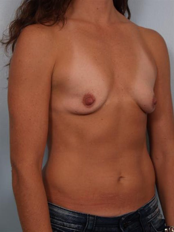 Breast Augmentation Gallery - Patient 1310677 - Image 5