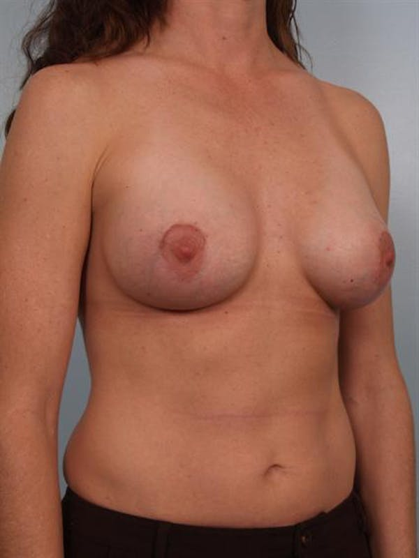 Breast Augmentation Gallery - Patient 1310677 - Image 6