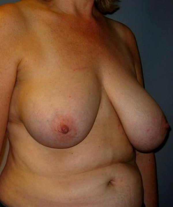 Breast Reduction Gallery - Patient 1310678 - Image 3