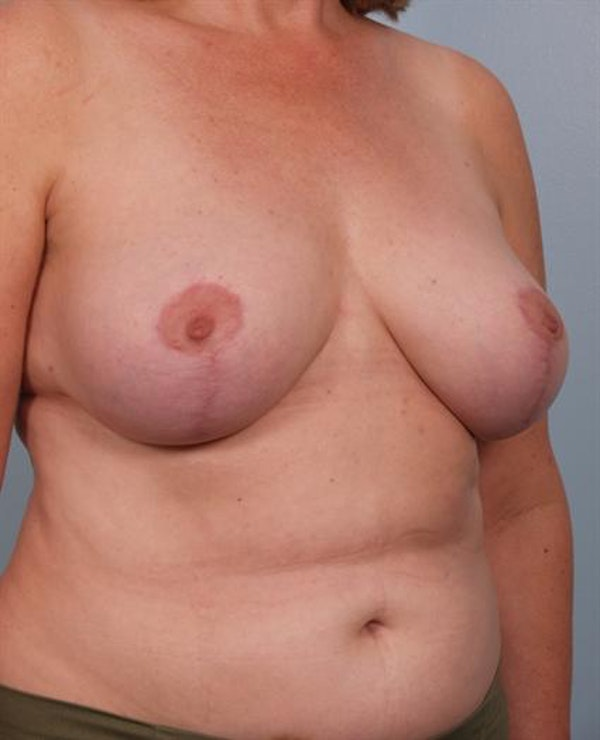 Breast Reduction Gallery - Patient 1310678 - Image 4