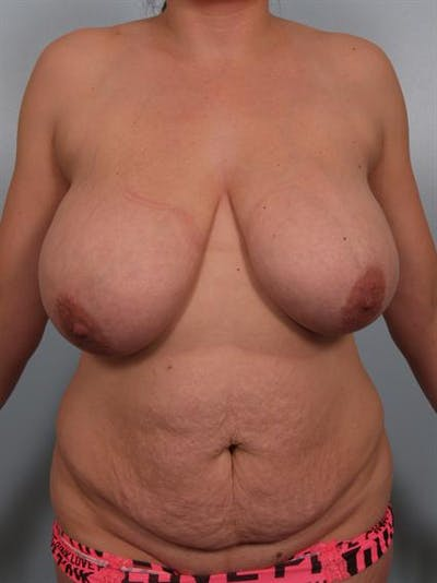 Mommy Makeover Gallery - Patient 1310680 - Image 1
