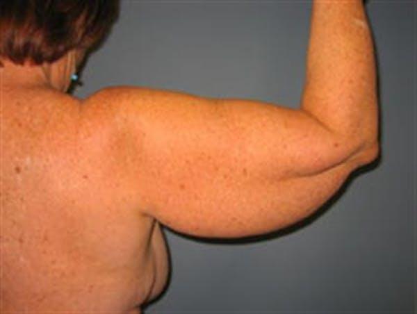 Brachioplasty (Arm Lift) Gallery - Patient 1310682 - Image 1