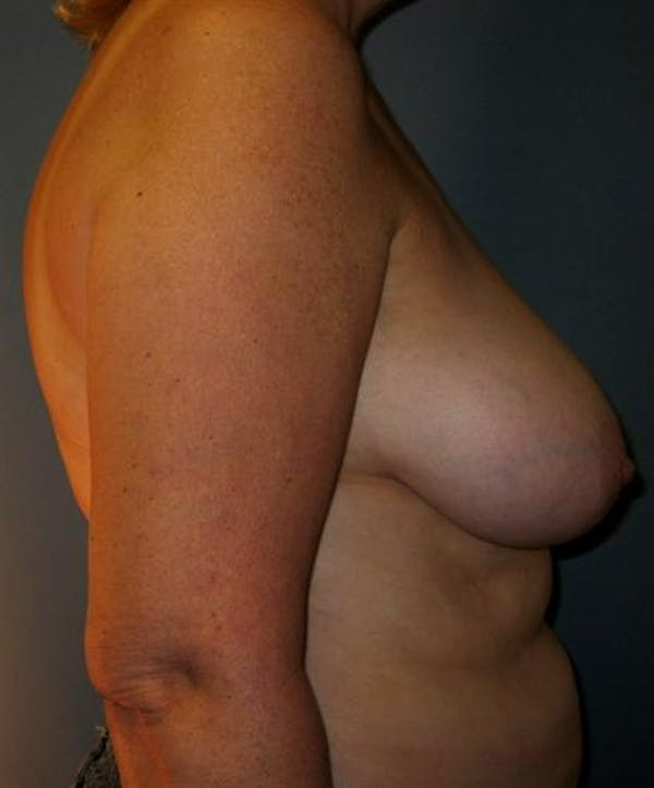 Breast Reduction Gallery - Patient 1310678 - Image 5