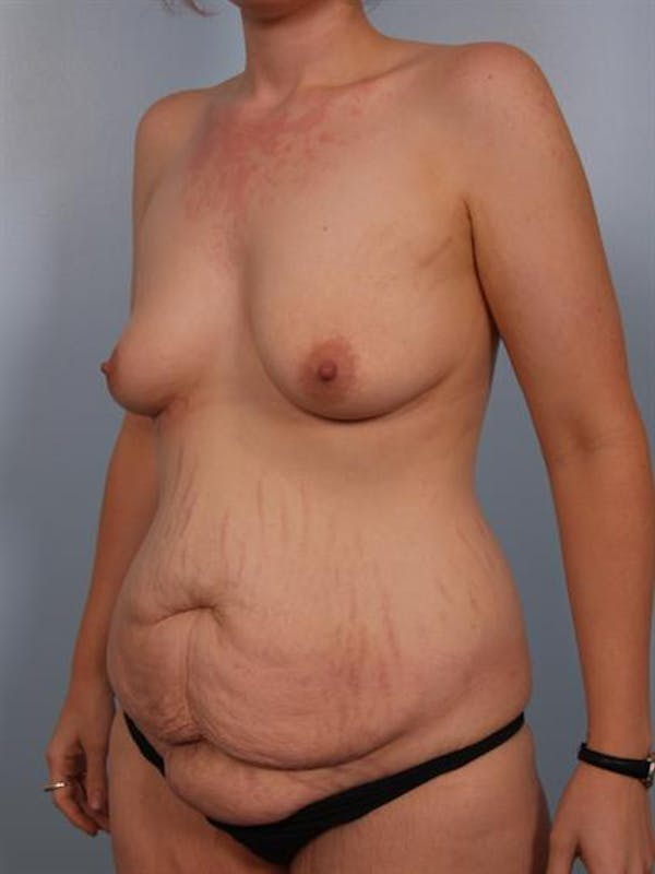 Breast Lift Gallery - Patient 1310683 - Image 3