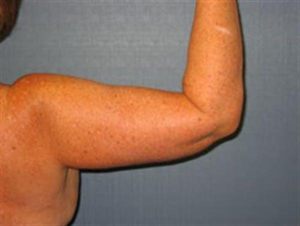 Brachioplasty (Arm Lift) Gallery - Patient 1310682 - Image 2